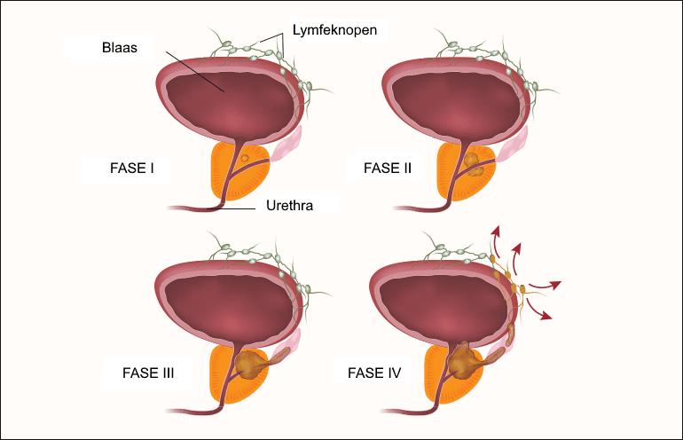 vier stadia van prostaatkanker